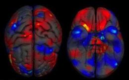 Bạn có tin: Bộ não của nam giới thực sự lớn hơn nữ giới?