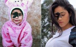 Sinh ra đã có vết bớt sậm màu trên mặt, 24 năm sau, cô gái thực sự tỏa sáng với vẻ đẹp lạ của mình