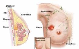Thiếu nữ 20 tuổi chết điếng khi nhận tin bị ung thư vú