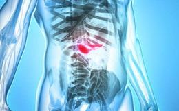 Cơ thể có 8 dấu hiệu này cần phải đi khám ngay để cảnh giác với bệnh ung thư tuyến tụy