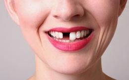 Bị gãy 1 răng, được bồi thường 56 triệu đồng