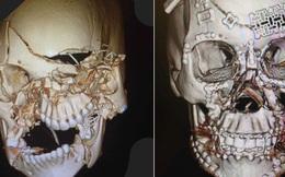 Bức ảnh do một bác sĩ chỉnh hình đăng tải sẽ khiến bạn trầm trồ về sự tiến bộ của y học