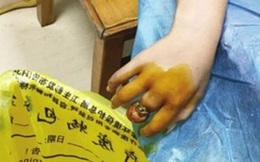 Chỉ vì một chiếc nhẫn rẻ tiền, bé gái này suýt mất cả ngón tay của mình