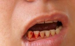 Hơn 100 nghìn người mắc sốt xuất huyết và 5 dấu hiệu không được bỏ qua