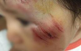 Hà Nội: Truy tìm nam thanh niên phóng mô tô tông bé gái 11 tháng trầy xước mặt rồi bỏ chạy