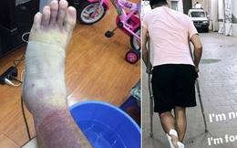 """Thủ môn Việt kiều Lâm """"Tây"""" lộ ảnh chân bầm tím khủng khiếp sau vụ bị hành hung"""