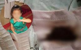 Sốc: Đặt nhầm thuốc hạ sốt cho bé gái vào âm đạo