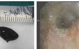 Ho suốt 3 năm mới phát hiện mắc hạt hồng xiêm trong phế quản