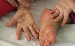Bệnh tay chân miệng vào mùa, các bậc cha mẹ nhất định phải biết điều này để phòng bệnh cho con