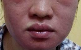 """Mặt """"biến dạng"""" vì thần dược siêu trắng da"""