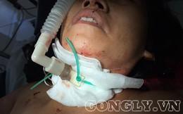 Nữ chủ quán cắt tóc bị người lạ dùng dao cứa đứt khí quản