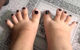 Đôi bàn chân có hình dáng nửa nhân sâm nửa bánh mỳ khiến cư dân mạng thích thú