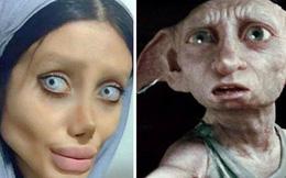 Cô gái phẫu thuật thẩm mỹ hơn 50 lần để nhìn giống Angelina Jolie, kết quả trả về gia tinh Dobby