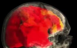 Video thú vị scan bộ não người phụ nữ trong suốt quá trình đạt cực khoái