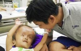 Xót cảnh bé gái 4 tuổi bị não úng thủy, đầu to gấp ba lần người thường mà bố mẹ nghèo không tiền chạy chữa