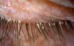 Hơn 4 năm liền không giặt gối, người phụ nữ đi khám và phát hiện hơn 100 con rận trong mi mắt