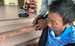 Vụ người cha bị con trai đánh gãy 2 xương sườn, mẻ xương ống: Tổn hại 6% sức khoẻ