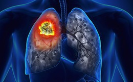 8 biểu hiện không ngờ tới của ung thư phổi: Hãy cảnh giác!