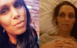 Mới 32 tuổi đã chết vì ung thư ruột: BS lưu ý đi vệ sinh có dấu hiệu này phải khám ngay
