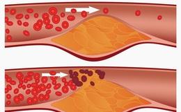 Phòng ngừa tình trạng đông máu giúp giảm nguy cơ tai biến mạch máu não