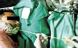 """Bác sĩ mất 1 giờ 15 phút để kéo một """"sinh vật lạ"""" ra khỏi miệng bệnh nhân"""