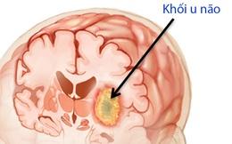 8 dấu hiệu cảnh báo có thể có khối u đang lớn dần trong não bạn