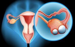 Trắc nghiệm: Dấu hiệu ung thư buồng trứng khó ngờ, dễ nhầm lẫn
