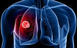 Nếu ho mà có kèm những triệu chứng sau, cần nghĩ đến ung thư phổi