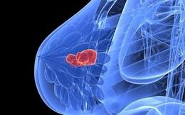 Nguyên PGĐ Bệnh viện K chỉ rõ 4 nguyên nhân gây 80% trường hợp ung thư vú