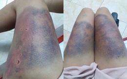 Hà Nội: Một phụ nữ tố bị bạn trai đánh thâm tím khắp cơ thể