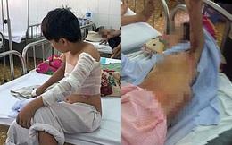 Lao vào cứu mẹ đang bốc cháy, thiếu niên 15 tuổi bị bỏng nặng