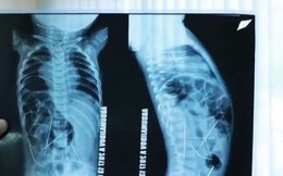 Bác sĩ sốc khi phát hiện 16 chiếc kim khâu trong người bé trai 11 tháng tuổi