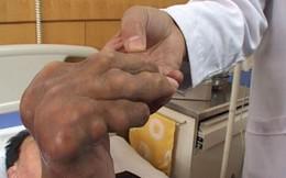 Hoàng Tiên Đan: Giải pháp hiệu quả cho người mắc gút