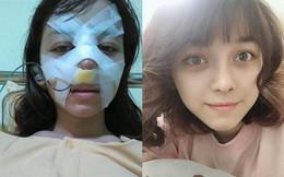 """Trải nghiệm kinh hoàng của cô gái trẻ lần đầu nâng mũi sẽ khiến nhiều người nghĩ lại nếu định """"dao kéo"""""""