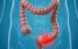Những dấu hiệu của ung thư ruột kết mà bạn không nên bỏ qua