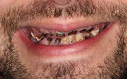 Nghiện nước ngọt có ga, phải nhổ hết 27 chiếc răng sâu