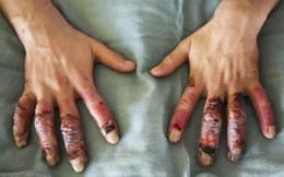 Tác hại nghiêm trọng nào xảy ra nếu bạn cứ lái xe với đôi tay trần trong trời giá rét?
