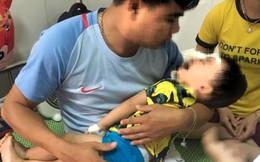 Thêm một bé 2 tuổi bị chó nhà cắn rách mặt, tổn thương mắt
