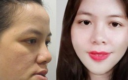 """27 năm không khép được miệng và bị gọi là """"đồ mặt méo"""", cô gái tiến hành ca đại phẫu đổi diện mạo và kết quả không ngờ"""