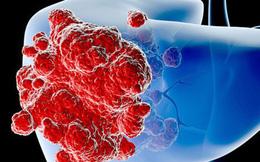 Vì sao người Việt dễ mắc ung thư gan: Chuyên gia cảnh báo 3 lý do