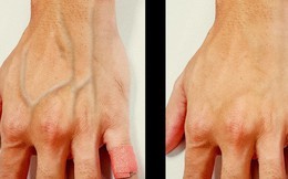 Một số người có làn da nổi gân guốc nhiều hơn hẳn phần còn lại và đây là lý do