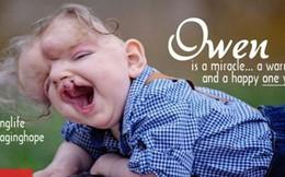 Phép màu kỳ diệu đến với cậu bé không hộp sọ dù bác sĩ chẩn đoán không sống nổi 1 ngày