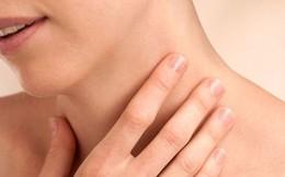 Hạch sưng vùng cổ gáy - Có đáng lo?
