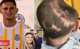 Nam thanh niên sống sót kỳ diệu chỉ với nửa hộp sọ trên đầu