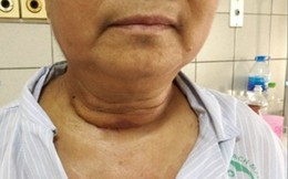 """Bướu giáp khổng lồ """"chui sâu"""" vào lồng ngực cụ bà suốt 10 năm, gây khó thở nặng"""
