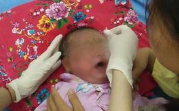 Quảng Ninh: Bé trai 32 ngày tuổi bị viêm loét toàn thân vì tắm lá