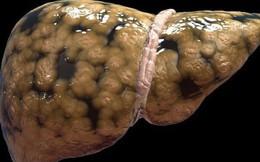"""Gan nhiễm mỡ là """"bước đệm"""" dẫn đến xơ gan và ung thư: 6 nguy cơ ai cũng cần biết để phòng"""