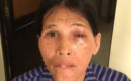 Suýt hỏng mắt vì đắp lá chữa đau mắt