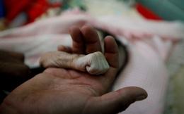 24h qua ảnh: Bà mẹ nắm tay con gái nhỏ tử vong do suy sinh dưỡng