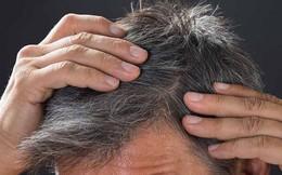 5 nhóm thực phẩm ngăn chặn chứng bạc tóc: Sau tuổi 30 bạn nên ăn để tóc đen mọc nhiều hơn